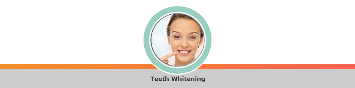 Same-day whitening treatments - immediate results